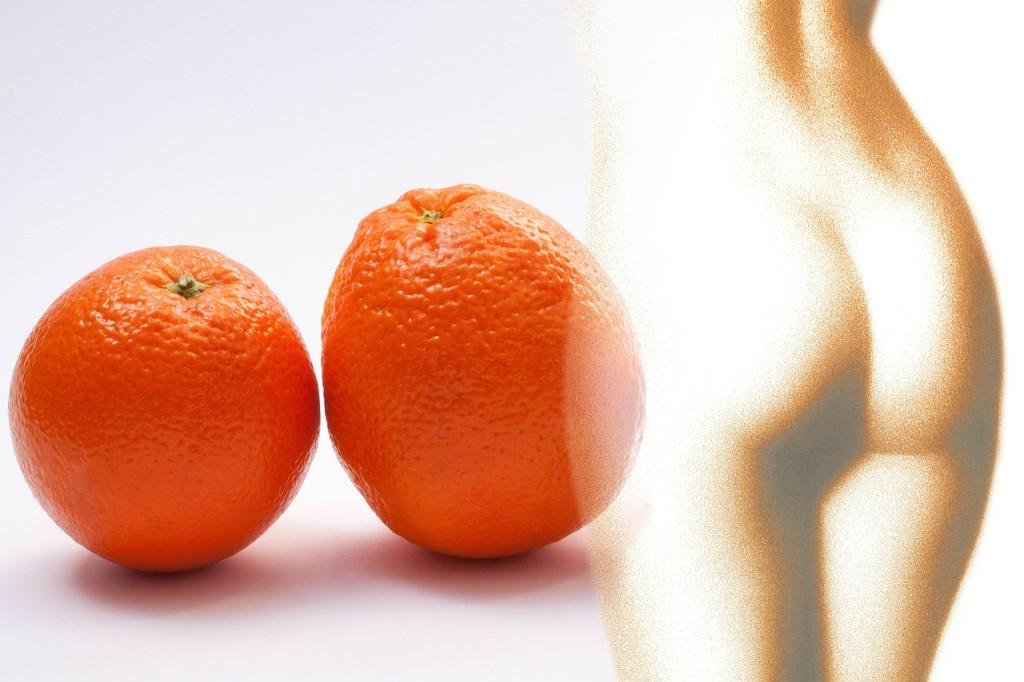 pomarančova pokožka celulitída